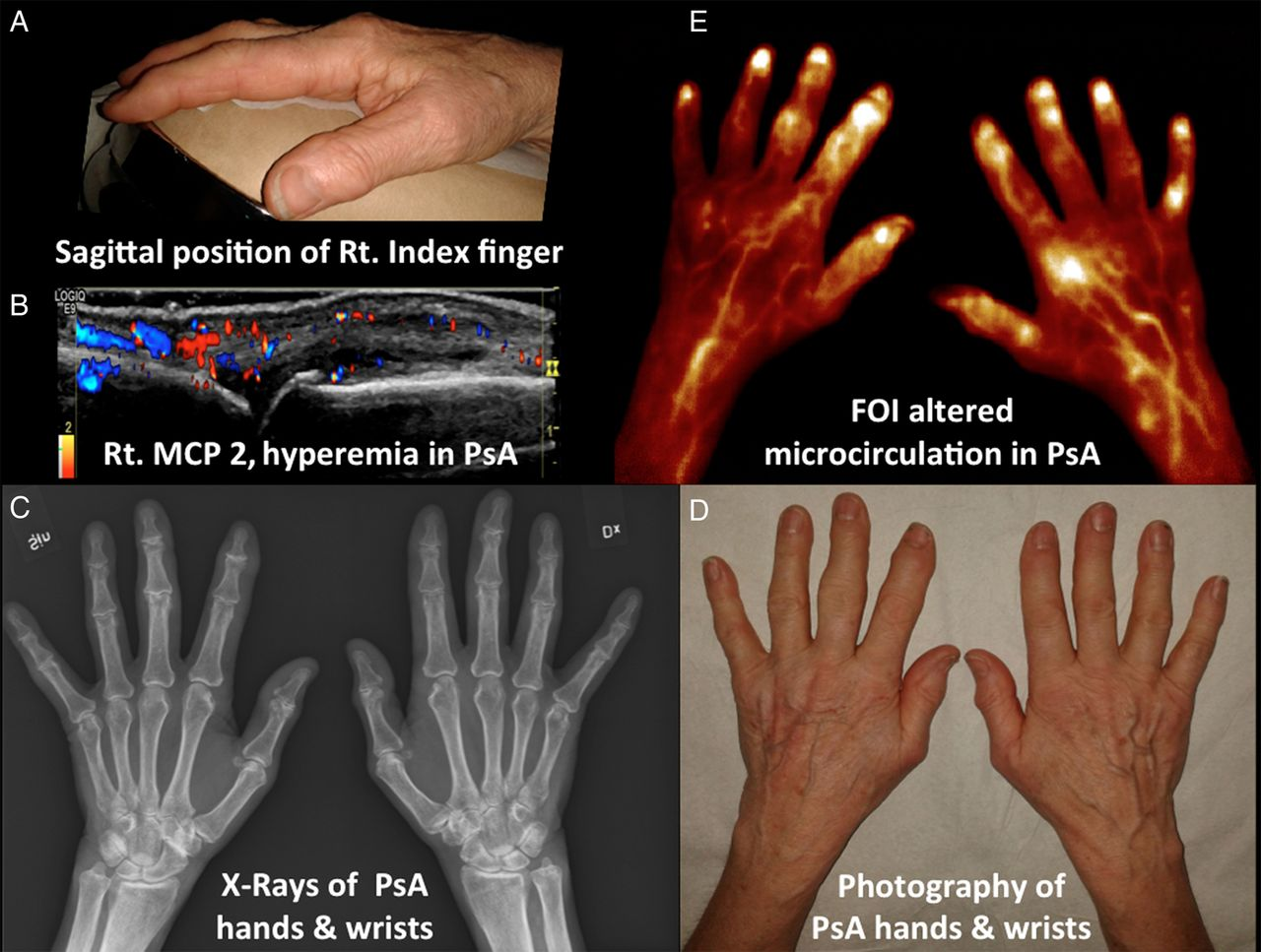 Detection Of Clinically Manifest And Silent Synovitis In The Hands
