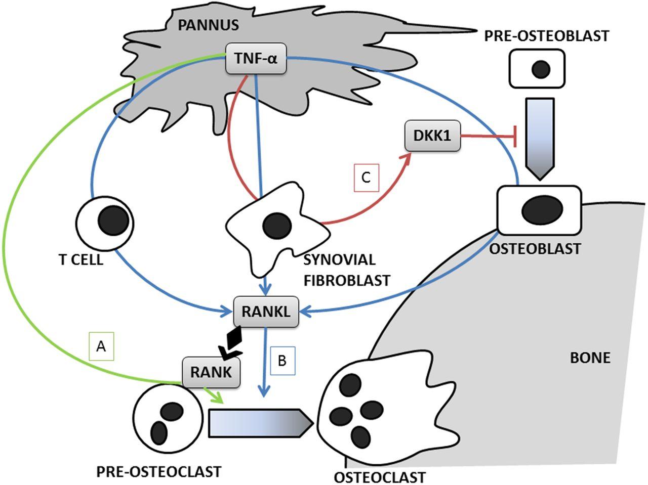 Bone And Tnf In Rheumatoid Arthritis Clinical