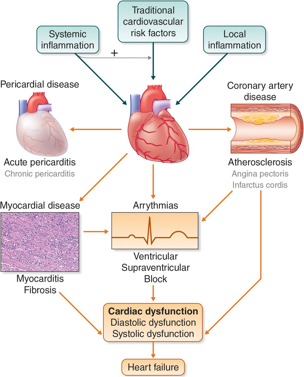cardiovascular diseases and infection inflammation Among the serious complications people with rheumatoid arthritis (ra) experience, cardiovascular disease heads the list having ra doubles the risk of most heart problems, including heart attack, stroke and atherosclerosis — the buildup of fat, cholesterol and cellular debris (plaque) on blood vessel walls.