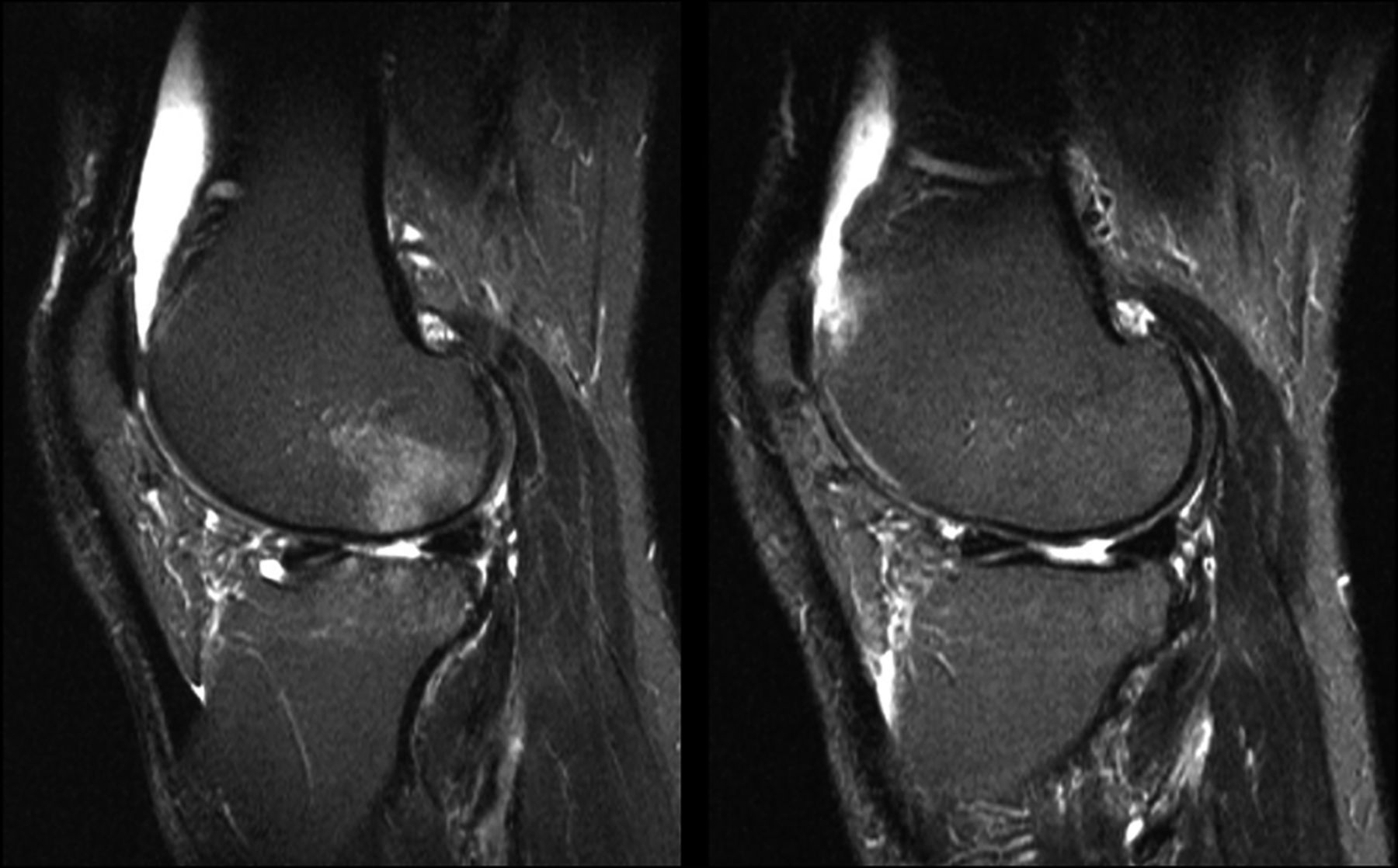 Preliminary Validation Of The Knee Inflammation Mri