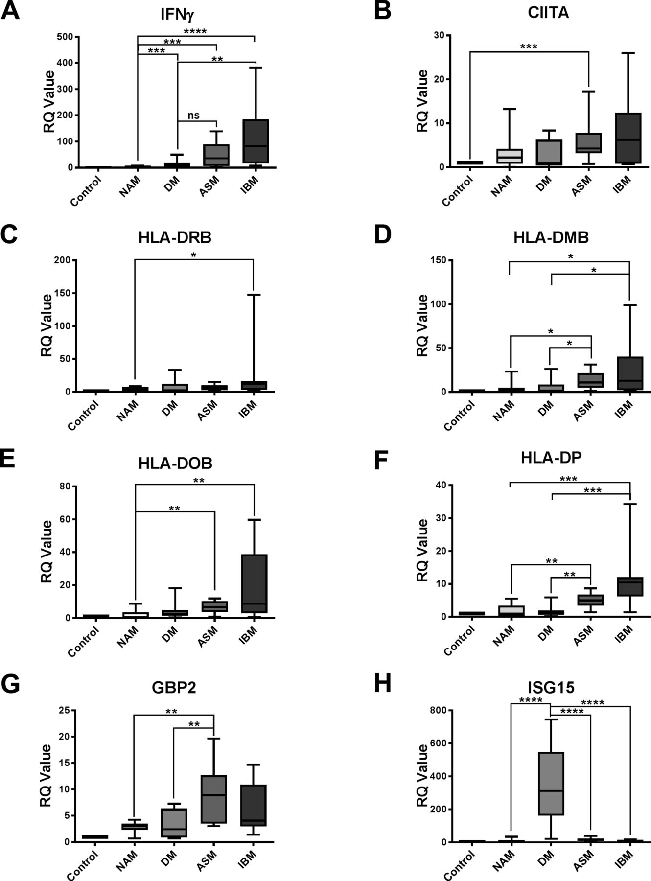 Distinct interferon signatures stratify inflammatory and