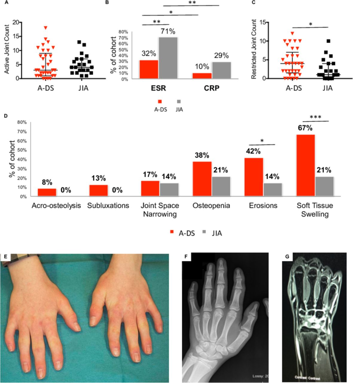 Arthropathy of Down syndrome: an under-diagnosed inflammatory joint